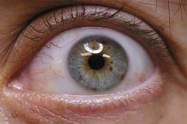 ojo-protesis